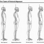 May is Correct Posture Month! Self-Test for Posture Problems